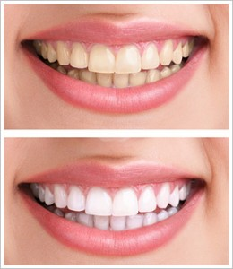 United Smiles | Cosmetic Dentistry - Dentist Mernda