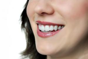 For Excellent Tooth Repairs Choose Porcelain Veneers in Mernda mernda dentist