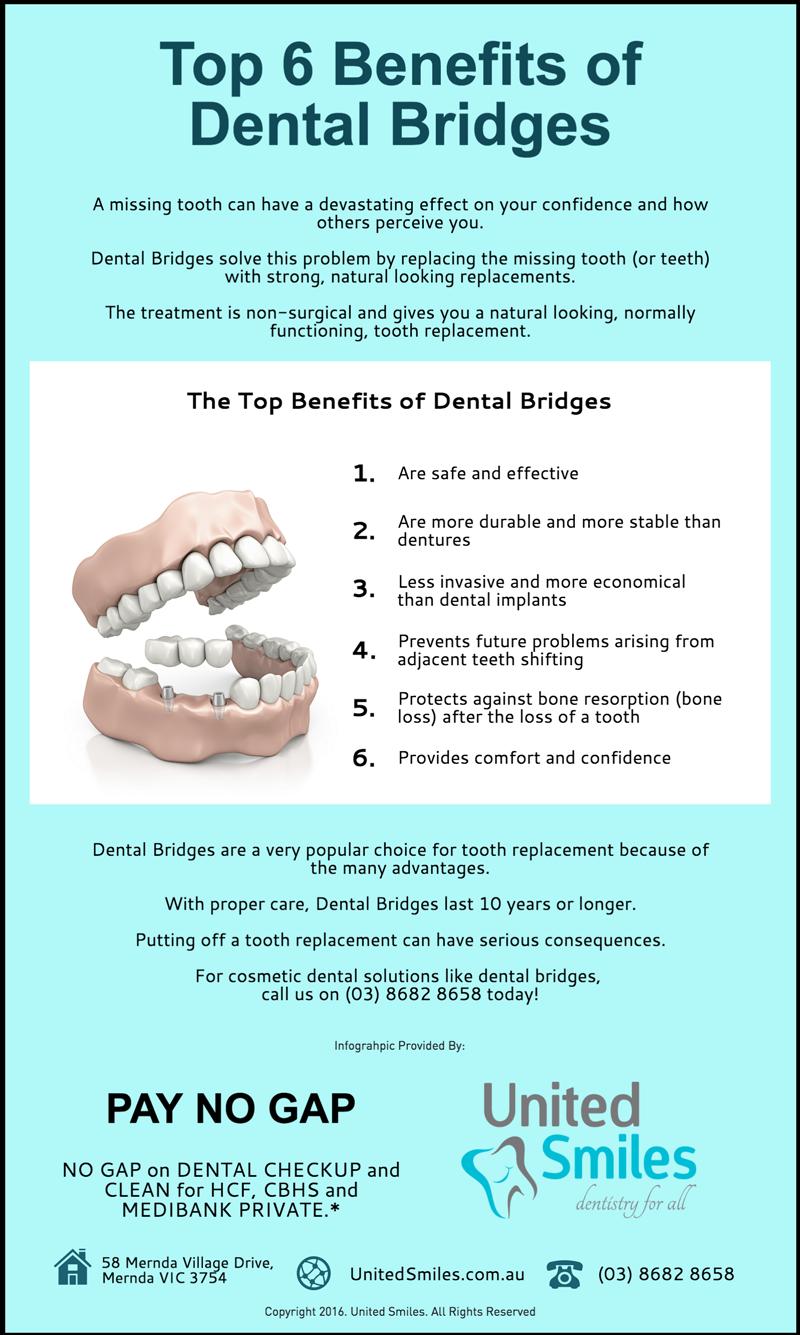 Top 6 Benefits of Dental Bridges | United Smiles