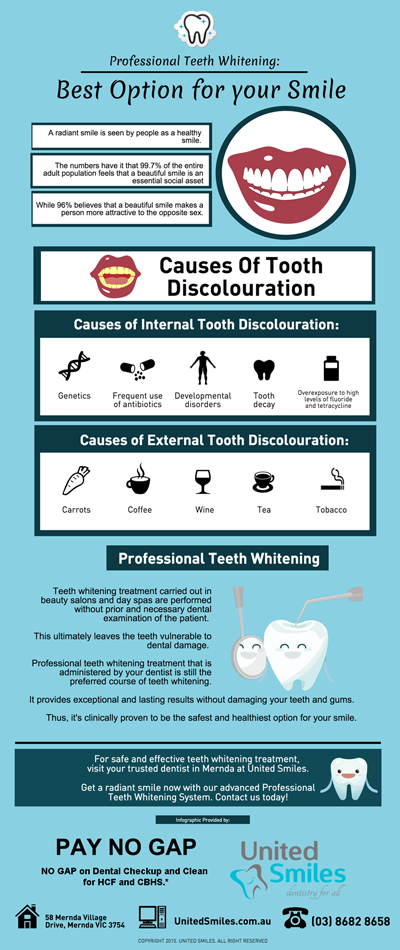 Professional-Teeth-Whitening-Best-Option-for-your-Smile-p-