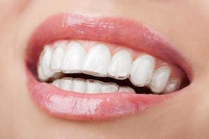 adult braces - never too late for a great smile