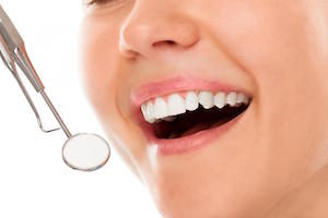 Why Tooth Coloured Fillings are Better for Your Smile