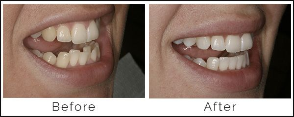 Inman Aligner Before and After | United Smiles - Dentist Mernda