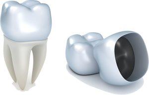 Dental Crowns | Dentist Mernda