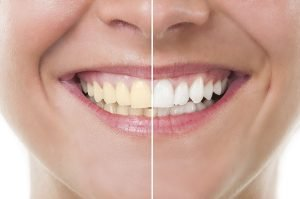 4 Ways to Go From Yellow to Perfect White Teeth